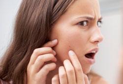 Как ухаживать за кожей лица, склонной к акне?