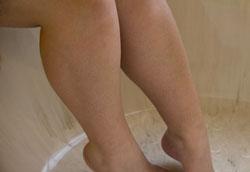 Как избавиться от чёрных точек на ногах?